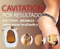 cavitacion_sevilla